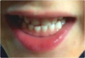 tandenwissel